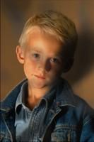 Una fotografía de un niño con manchas oscuras